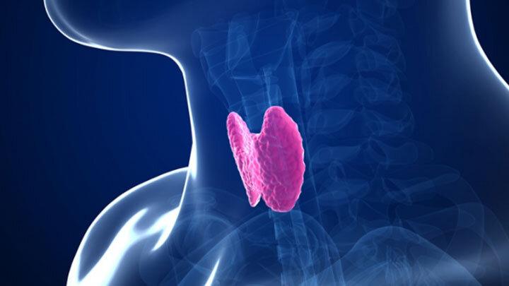 Hipotiroidi – Tiroid Bezinin Az Çalıştığı Durumlar