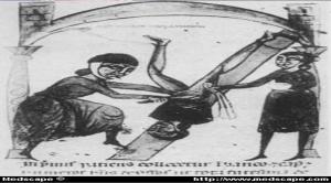 Eski Gravürlerde Fıtık Operasyonları