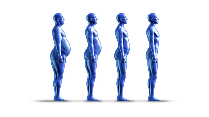 Obezite (Bariatrik) Cerrahisi Kimlere Uygulanır?